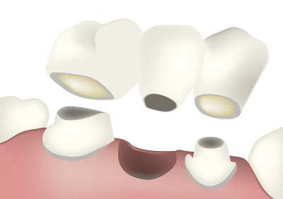 Dental Bridge Crown Denture Animation